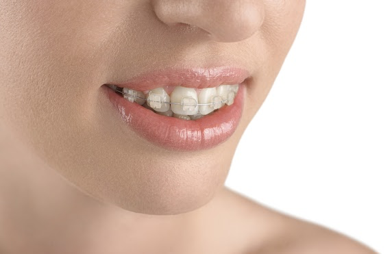 Ceramic Braces from your Greater Salt Lake Area Braces Provider